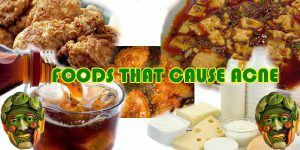 Food You Should Avoid To Reduce PimplesOr Acne 2